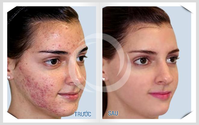 Ảnh trước và sau khi điều trị mụn cho khách hàng