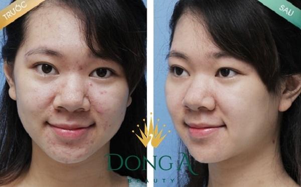 hình ảnh trước và sau khi trị mụn