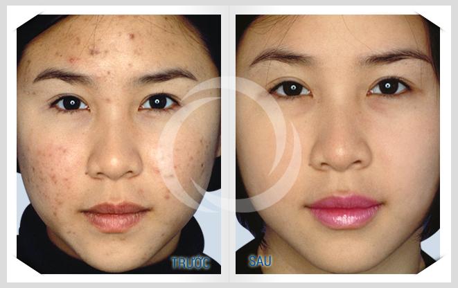 Kết quả đặc trị mụn hoàn hảo tại TMV Đông Á