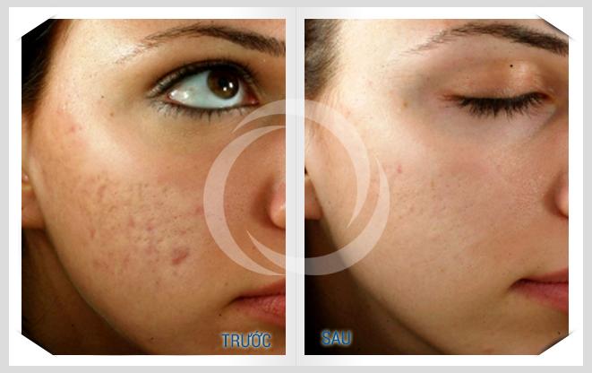 Trước và sau khi điều trị vết thâm sau mụn bằng công nghệ Peeling
