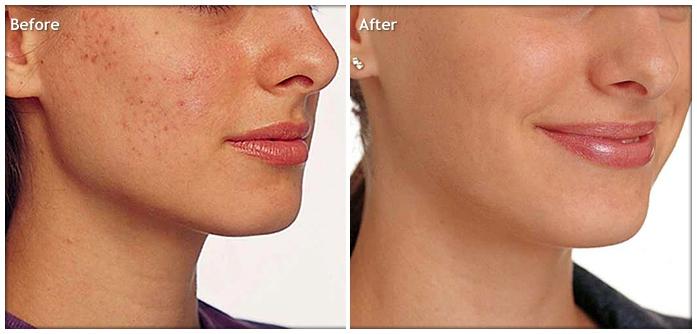 Kết quả trước và sau khi trị mụn bằng CN Blue Light