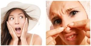 4 Cách trị mụn bọc ở mũi NHANH NHẤT an toàn tuyệt đối cho da
