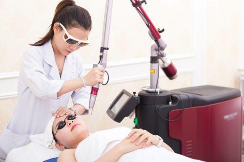 Chiếu ánh sáng Laser quang âm để trị sạch mụn