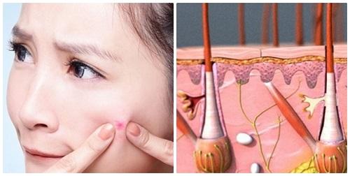 Nguyên liệu tự nhiên không thể giúp bạn loại bỏ tận gốc mụn trên da