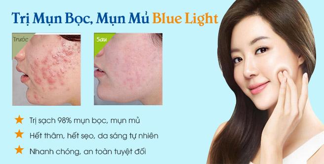 tri-mun-boc-bang-blue-light