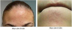 Hướng dẫn 7 cách trị mụn cám tại nhà hiệu quả cho mọi loại da