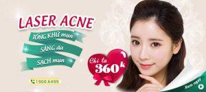 Laser Acne: Tống khứ mụn – Sạch thâm chỉ từ 360k
