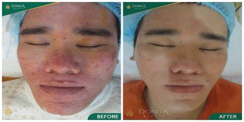 Kết quả thực tế của khách hàng sau khi điều trị mụn bằng công nghệ Laser Acne