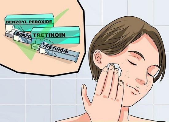 """""""Mổ xẻ"""" những thành phần có trong thuốc trị mụn (P1)"""