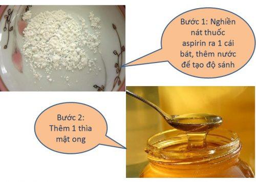 tri-mun-bang-thuoc-khang-sinh-aspirin-voi-mat-ong