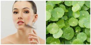5 cách trị mụn bằng rau má xóa sạch thâm mụn hiệu quả sau 1 tuần