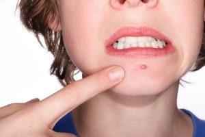 Đinh râu – Làm gì khi bị mụn đinh râu và đinh râu nguy hiểm ra sao?