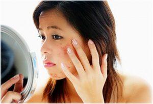 Hơn 90% số người tự nặn mụn tại nhà đều để lại sẹo thâm