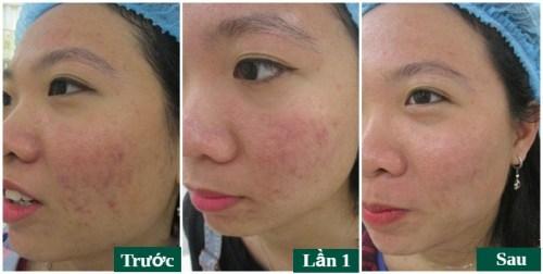 trị mụn acne remove tại đông á