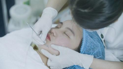 Quy trình trị mụn Acne Remove: lấy nhân mụn
