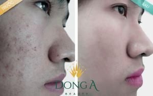Da mặt sần sùi lỗ chân lông to thì nên dùng phương pháp tự nhiên hay công nghệ?7