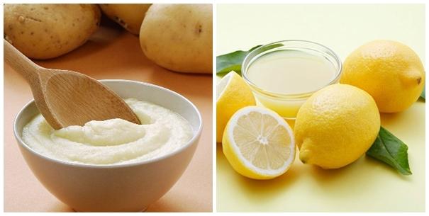 Cách trị mụn cám tại nhà hiệu quả bằng khoai tây kết hợp với nước cốt chanh