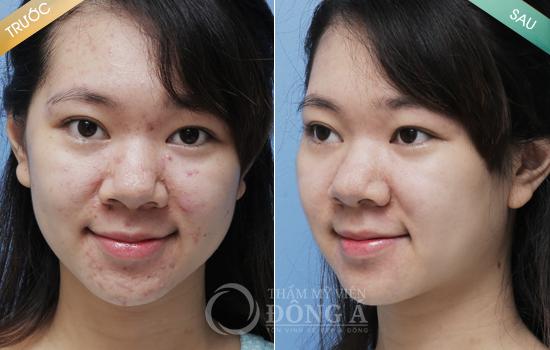 Khách hàng thực tế sau khi điều trị mụn Acne Care