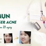 Trị mụn bằng Laser Acne – sạch mụn, sáng da, mịn màng sau 21 ngày