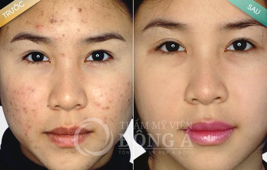 lam-sao-de-het-mun-laser-acne-singapore
