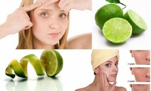 Nước cốt chanh cũng rất giày vitamin C và axit nên có khả năng điều trị mụn bọc rất tốt