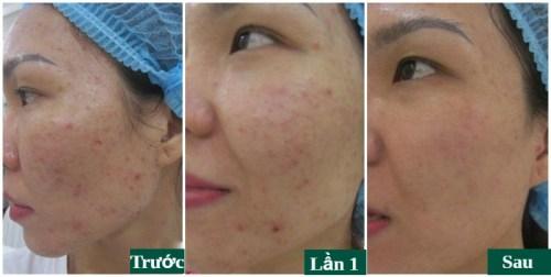 khách hàng trị mụn acne remove tại đông á