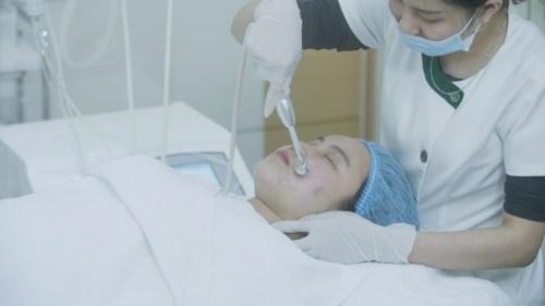 Quy trình trị mụn Acne Remove: bơm oxy