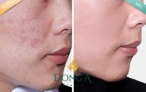 Da mặt sần sùi lỗ chân lông to thì nên dùng phương pháp tự nhiên hay công nghệ?6