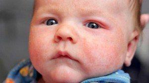 Làm sao để con hết mụn sữa trẻ sơ sinh? Lời khuyên nào dành cho mẹ